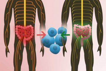 Multiple Sklerose Darmflora